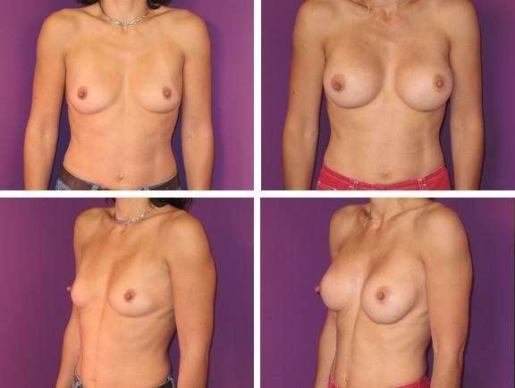 Augmentation mammaire 2