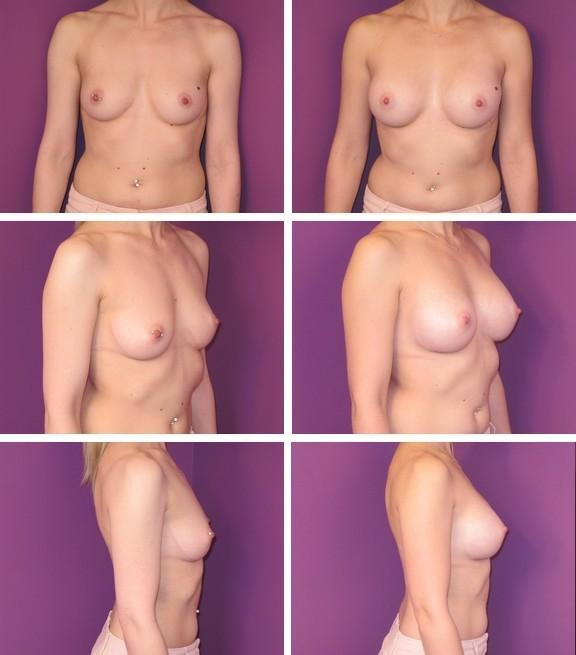 Augmentation mammaire 3