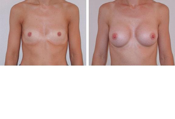 Augmentation mammaire cas n°1 (face)