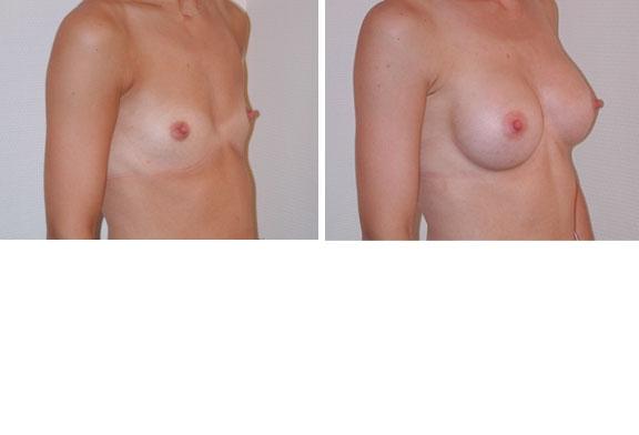Augmentation mammaire cas n°1 (profil)