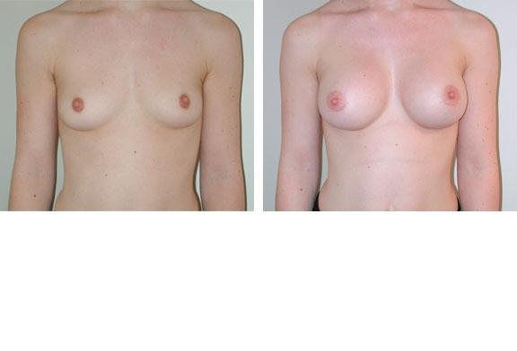 Augmentation mammaire cas n°2 (face)