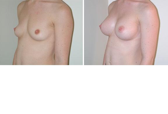 Augmentation mammaire cas n°2 (profil)
