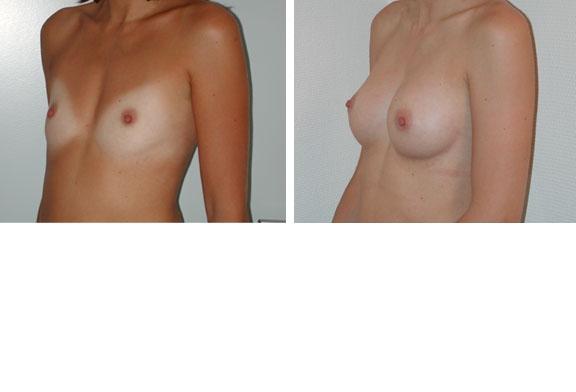 Augmentation mammaire cas n°3 (profil)